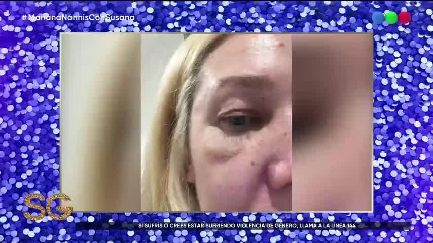 Mariana Nannis, victima de violencia de genero por parte del pajaro