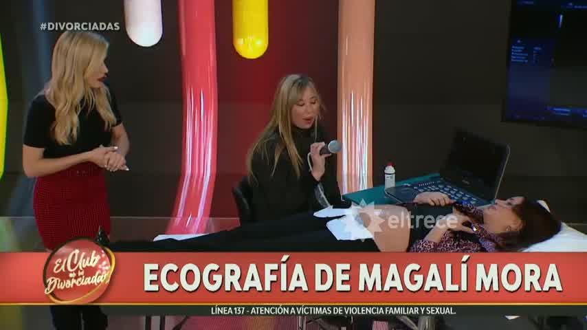 El club de las divorciadas: Magalí Mora se hizo una ecografía en vivo